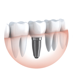 Dental Implants Cost Sydney