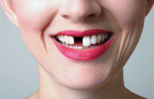Risks of overseas dental implants