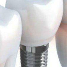 Urban Dental Implant Myths Exposed