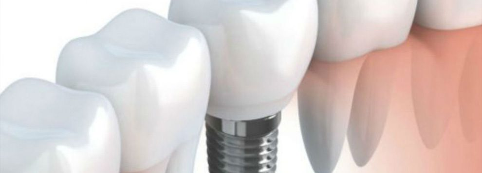 Urban Dental Implant Myths Exposed