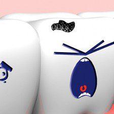 Voluntary Wisdom Teeth Extraction