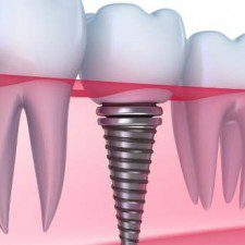 Disadvantages of Dental Implants