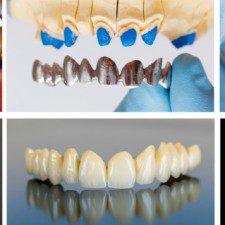 Denture Function