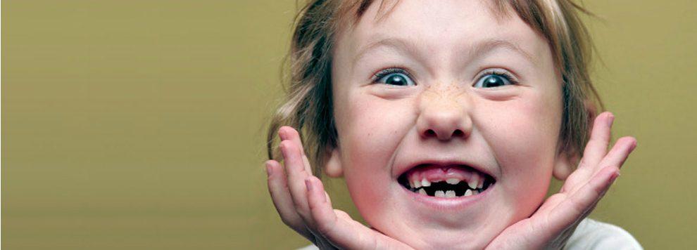Replacing Multiple Missing Teeth