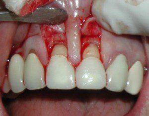 Teeth Surgery