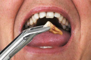 Teeth Removal