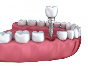 Brief Focus about Dental Implants