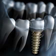 Prepare for Dental Implants Procedure with these 6 Expert Tips