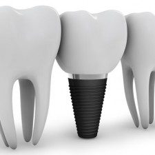 4 Essential Facts You Should Know Before Getting Dental Implants
