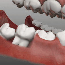 4 Appealing Attributes of Good Quality Dental Implants