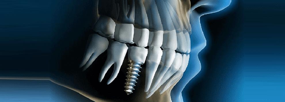 Cheap dentist melbourne sydney