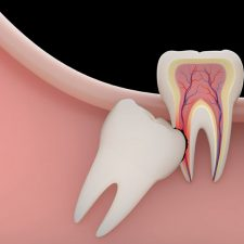 Know About Wisdom Teeth