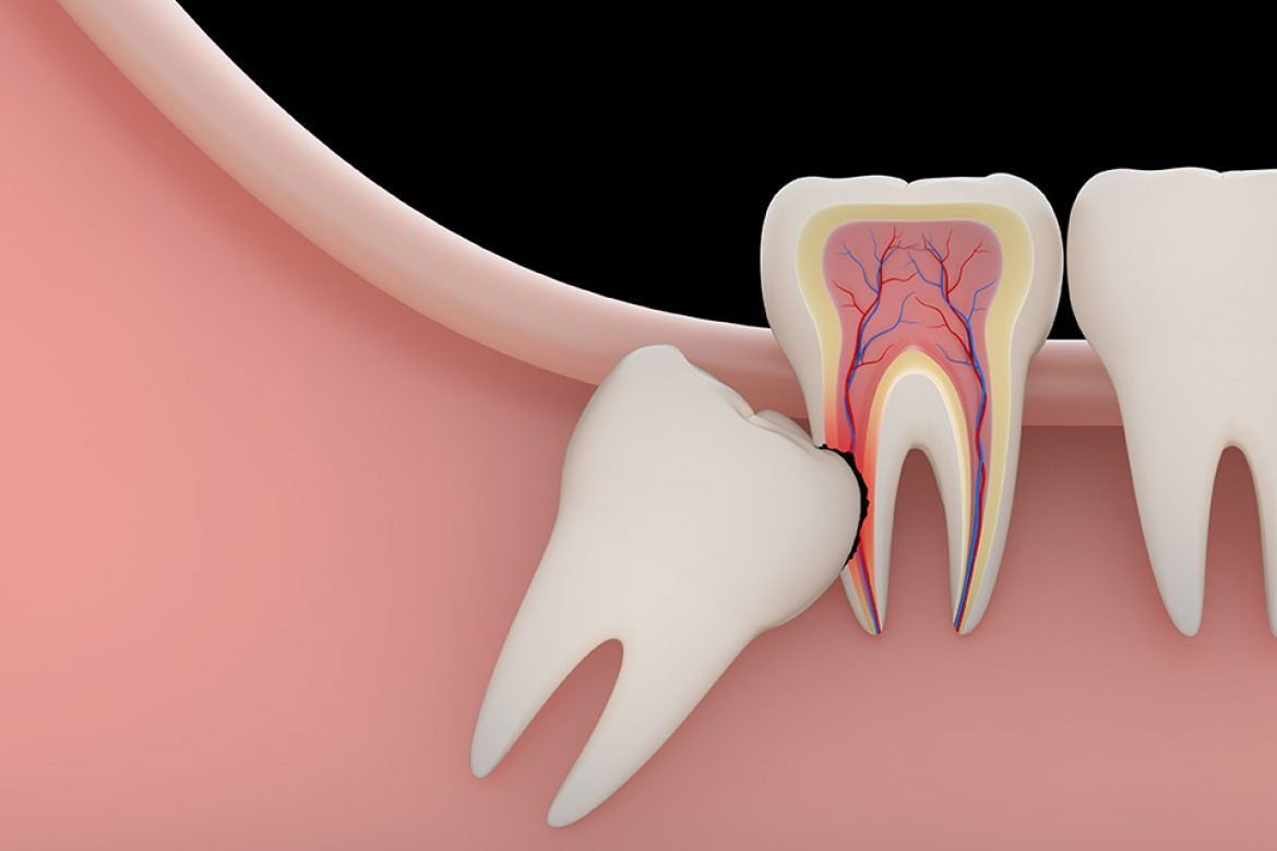Know About Wisdom Teeth
