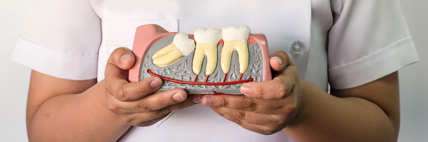 Nurse having an Dental Set in hand