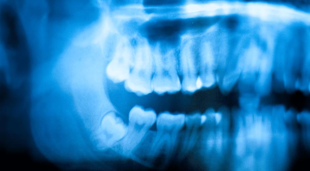Wisdom Teeth Dangerous