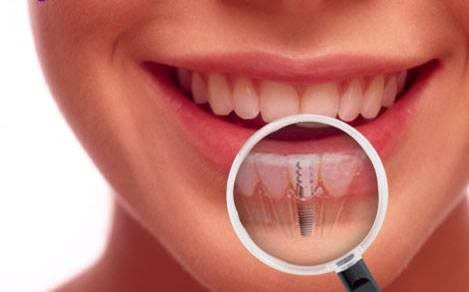 Dental Implants - Aftercare for a Smooth Experience