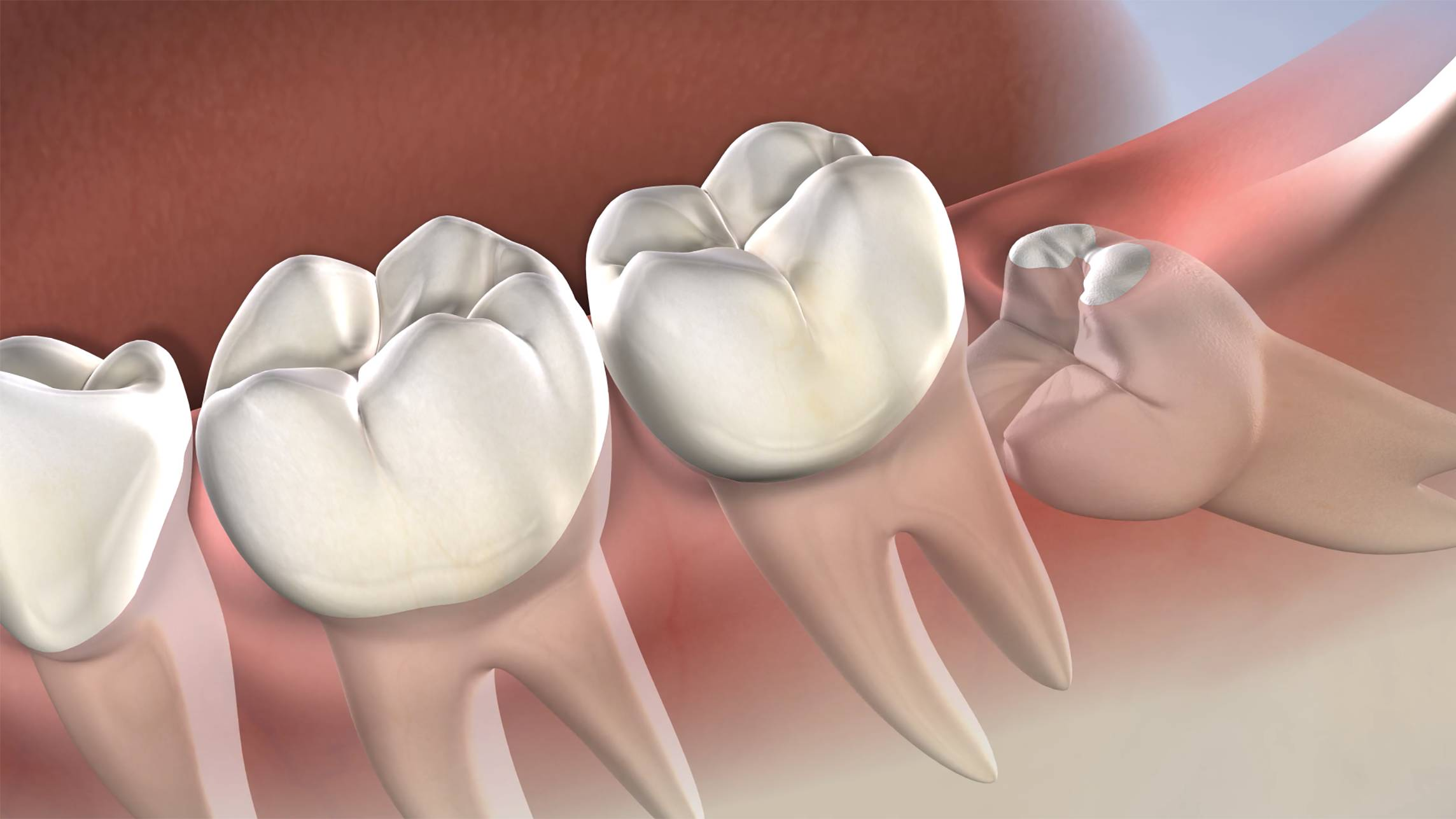 Wisdom Teeth procedure