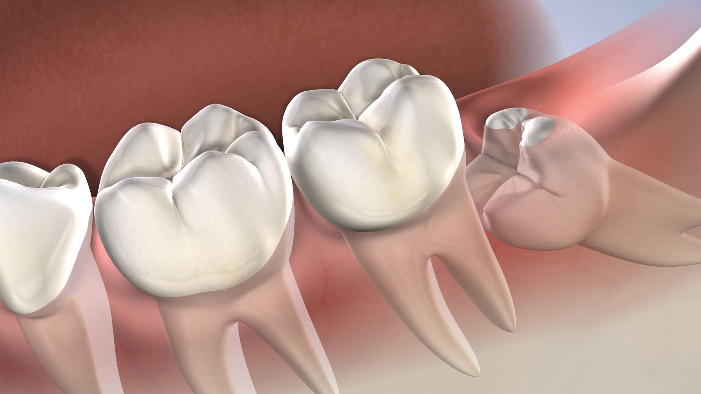 Wisdom teeth removal Procedure in Sydney