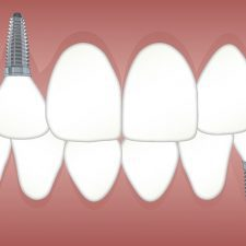 Which Is The Best Option For Replacing Missing Teeth?