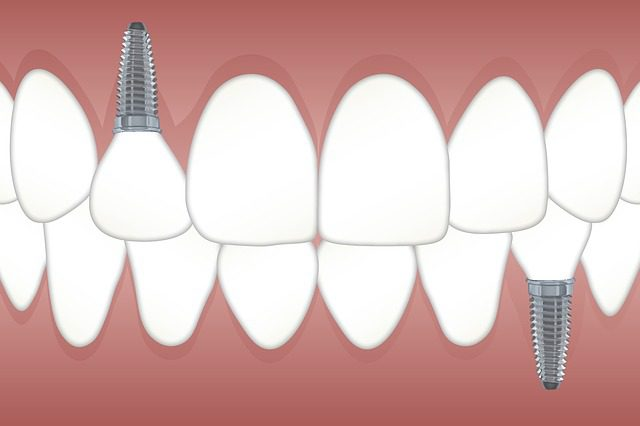 Best Option For Replacing Missing Teeth?