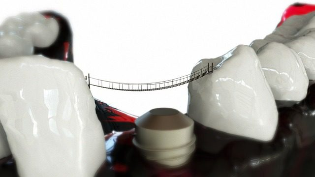 Have You Replaced Your Missing Teeth With Dental Implants?