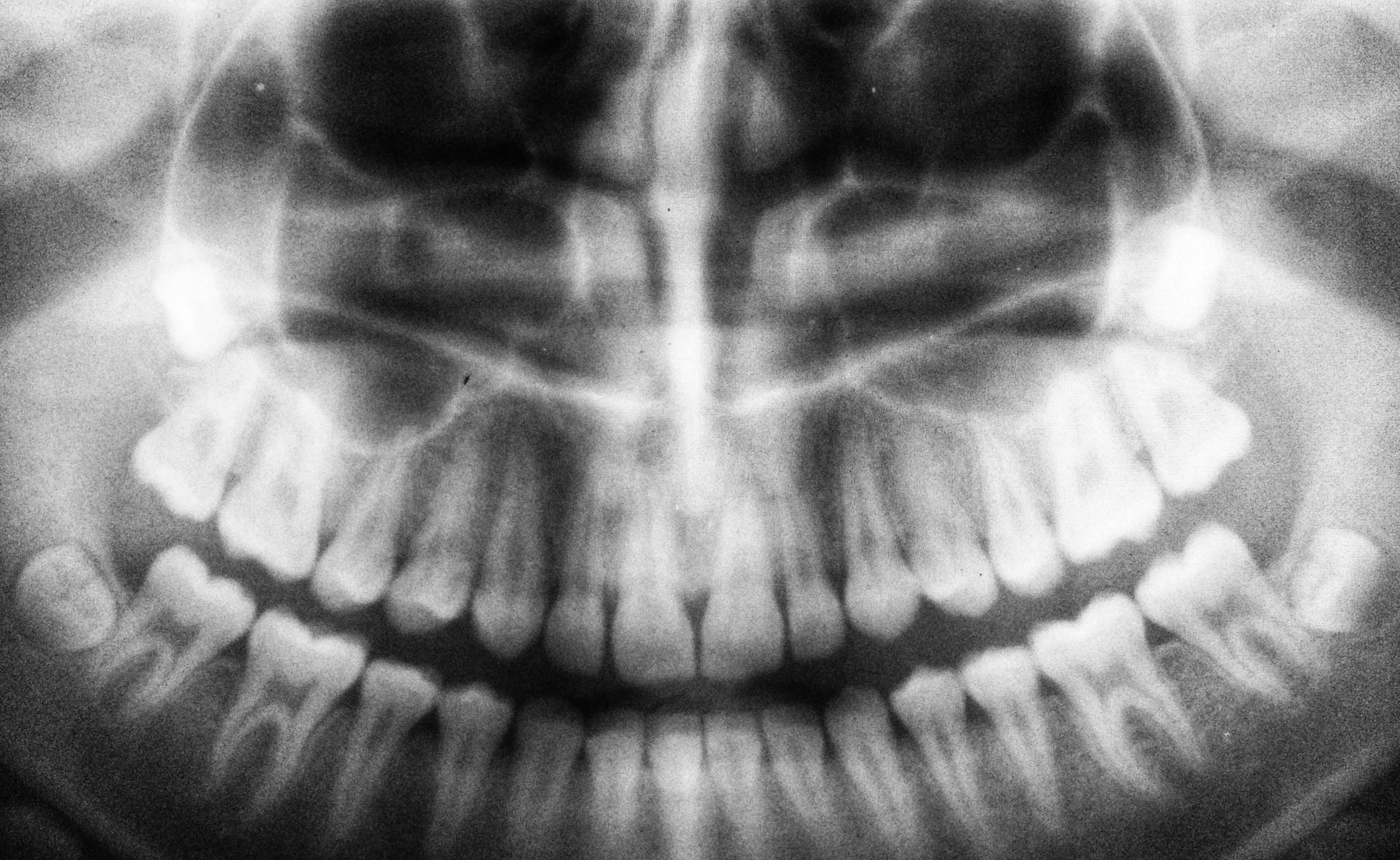 Why Do Wisdom Teeth Cause a Lot of Oral Problems?