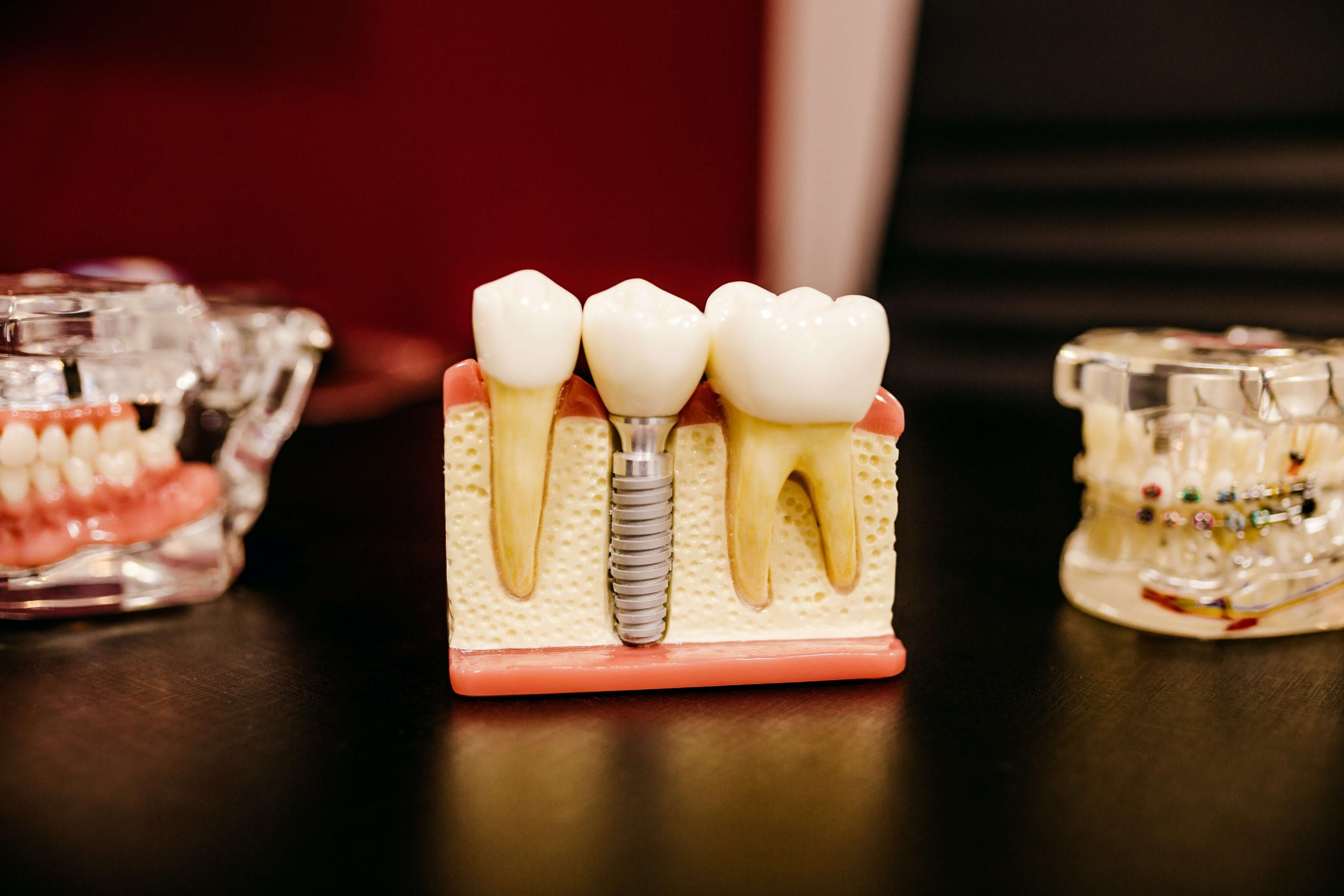 Things You Need To Know Before Choosing Dental Implants