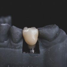 Avoid these 5 Mistakes in Your Dental Implants Treatment