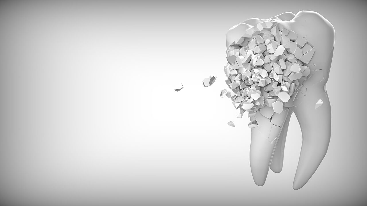Top Two Options for Replacing a Lost Tooth - Why is the Best?